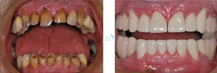 EuroMed Dental Sense1