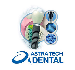 astra tech implantater