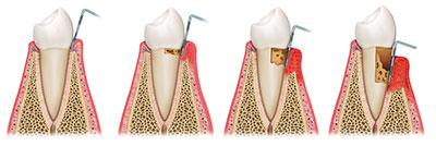img 01 periodonti tannkjøttundersokelse